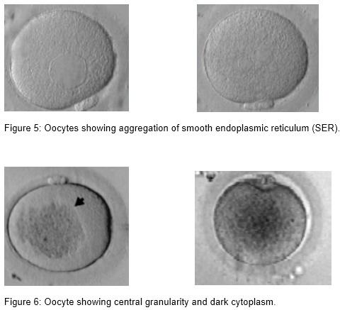 embrio_3