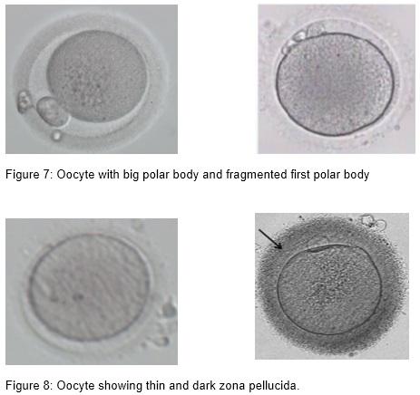 embrio_4