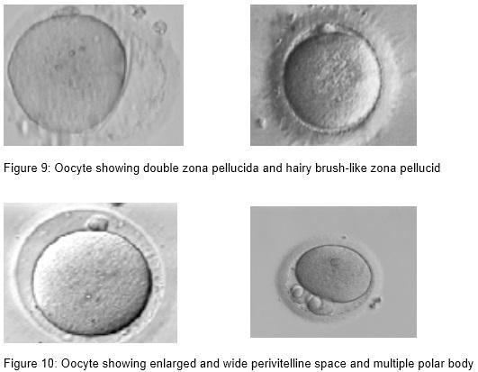 embrio_5