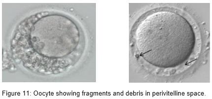 embrio_6