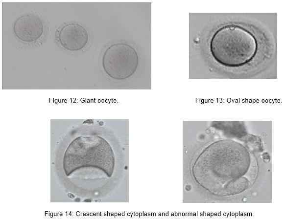embrio_7