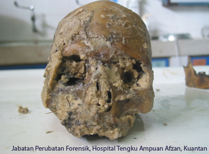identification in forensic anthropology portal myhealth