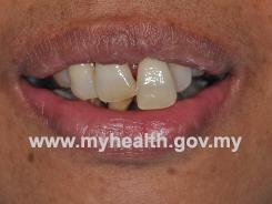 gigi-panjang
