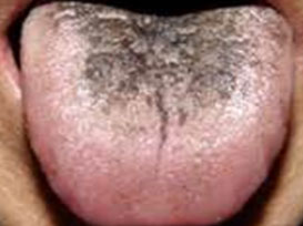hairy tongue from smoking