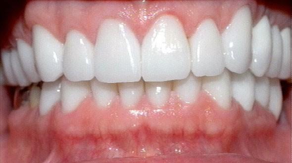 Healthy Gums For Constructing Dental Crowns & Bridges ...