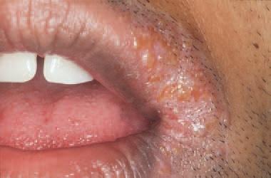 herpes-labialis