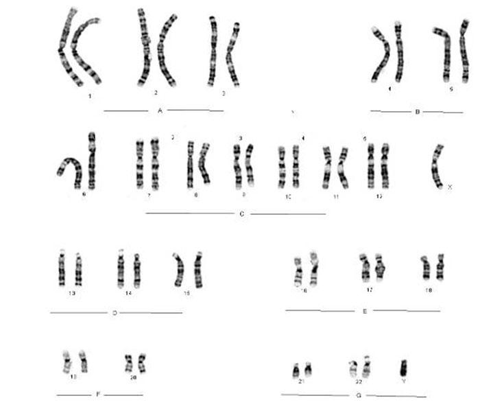 kromosom4