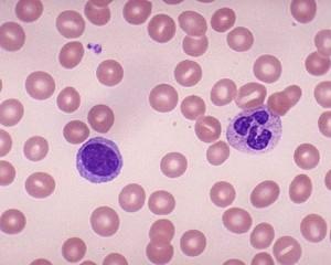 Leukemia (Kanser Darah)