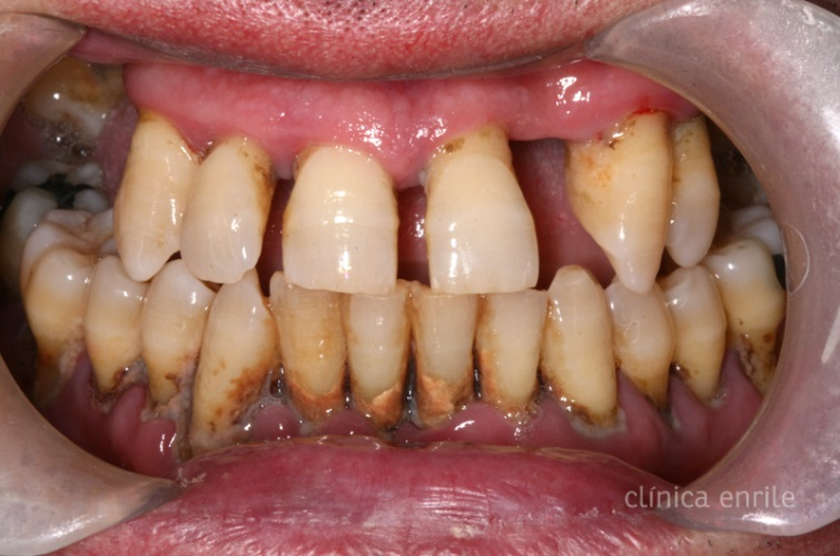 Kenapa Gigi Saya Menjadi Jarang Portal Myhealth