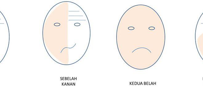 Lumpuh Otot Muka Portal Myhealth
