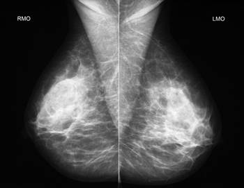 mammography_1