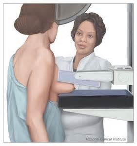 mammography_2