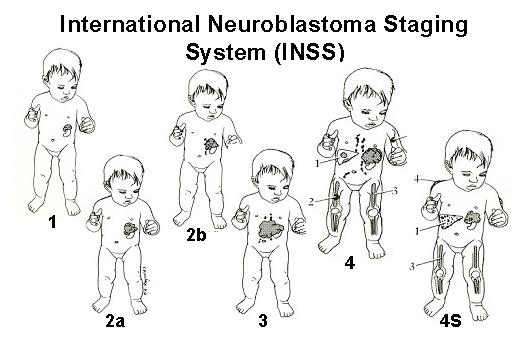 neuroblastoma5