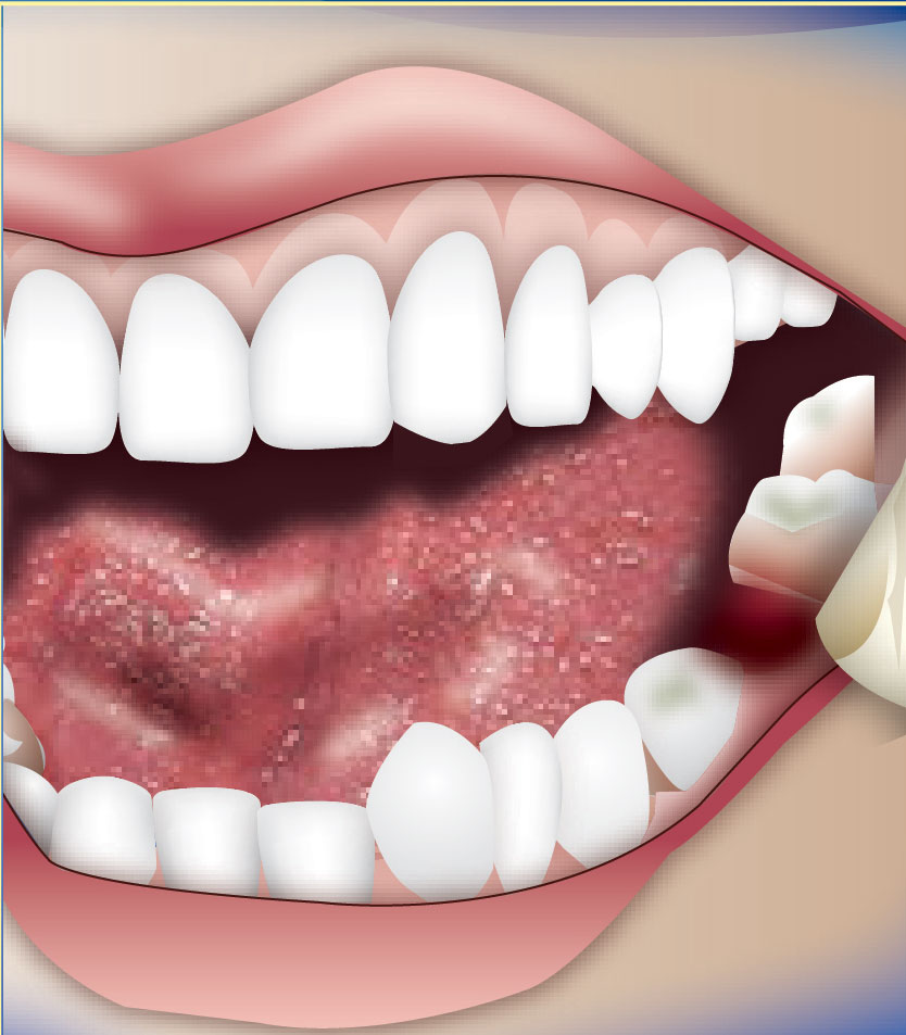 Bleeding Tooth Socket After Extraction Portal Myhealth