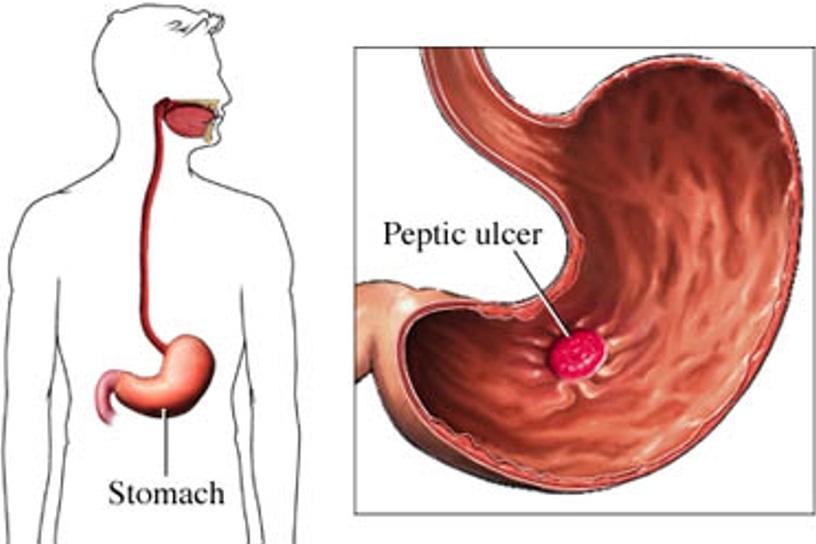 peptic_ulcer