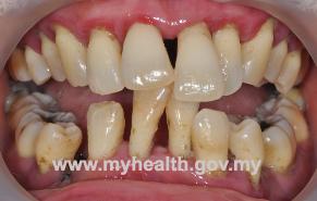 periodontitis-gigi-panjang