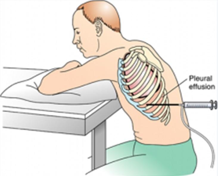 Pleural Biopsy Conventional Portal Myhealth
