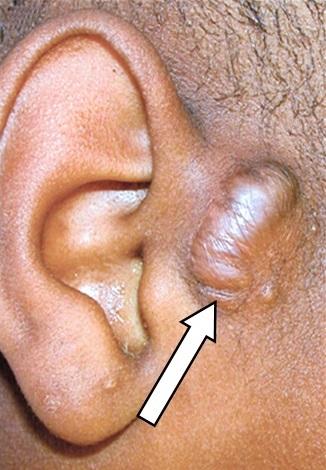 Preauricular Sinus - PORTAL MyHEALTH
