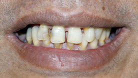 Restorative treatment with crown, bridge and implant