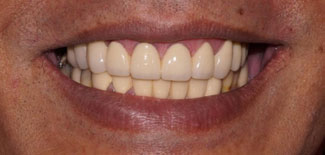 Orthodontics Treatment to realign the teeth with orthodontic braces
