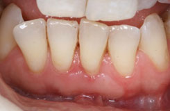 Periodontal Surgery With Soft Tissue Grafting