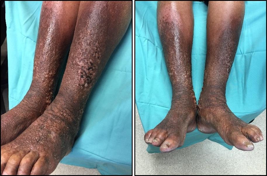 stasis_eczema