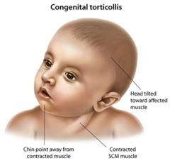 torticollis(bi)
