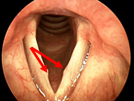 vocal-fold-nodules