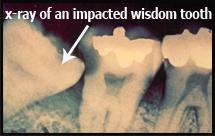 X-ray gigi bongsu terimpak